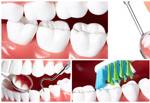 White teeth pictures PSD